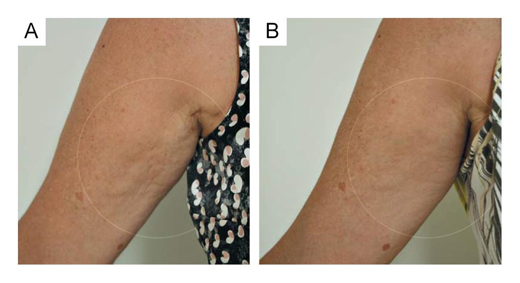 Surgical & Cosmetic Dermatology – http://goo.gl/4p2NKw | Fig. A: Antes do tratamento. Fig. B: 2 meses depois de 4 aplicações do Sculpra.