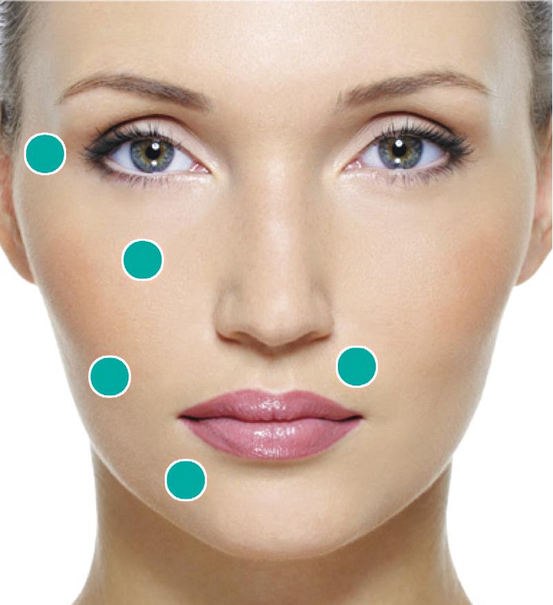 Na imagem, diferentes áreas onde o Sculptra pode ser aplicado a fim de estimular a produção do colágeno e devolver a firmeza da pele.