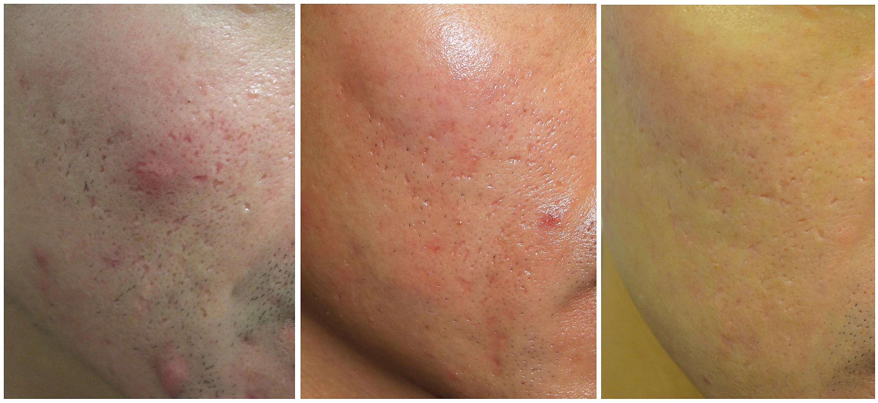 A imagem mostra os momentos antes, durante e depois do tratamento. A frequência do tratamento deve ser uma decisão do dermatologista.