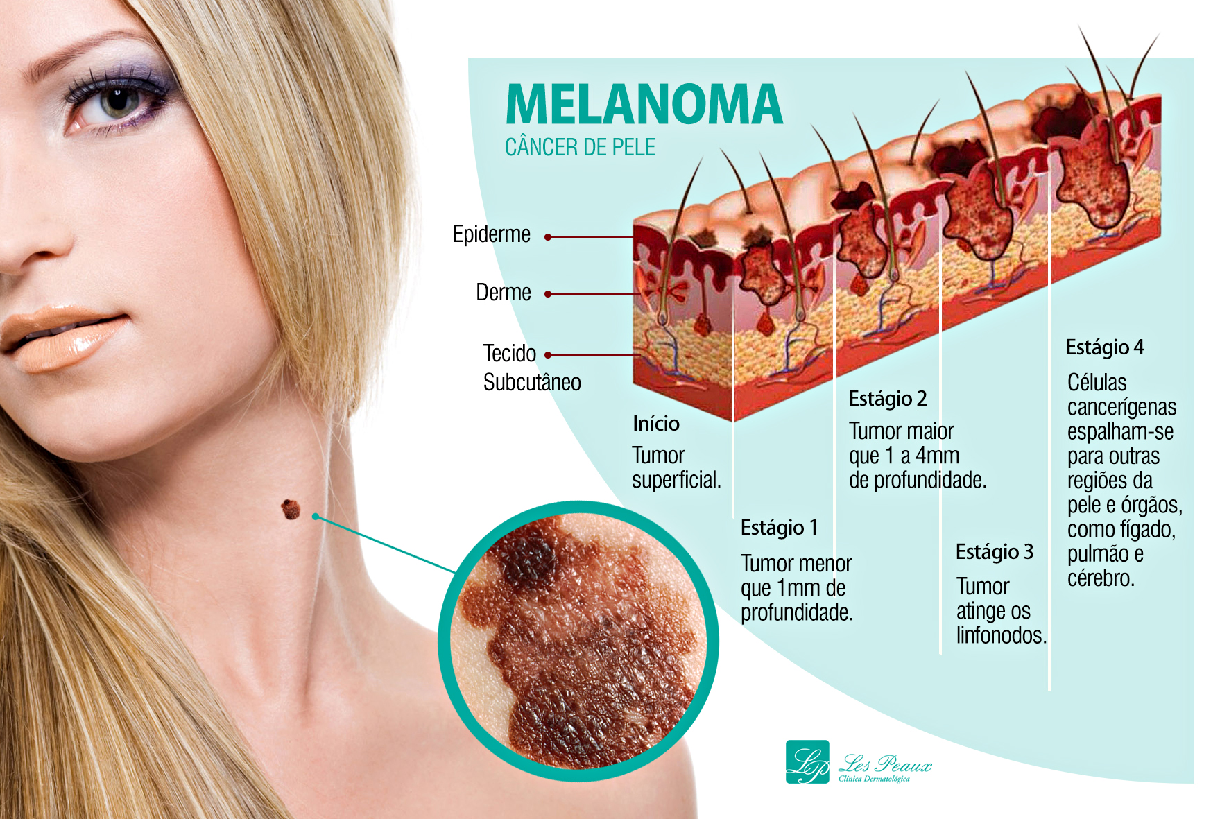 Nos estágios iniciais, o Melanoma, tipo de câncer de pele mais agressivo, se desenvolve apenas na camada mais superficial da pele, o que facilita a remoção cirúrgica e a cura do tumor.