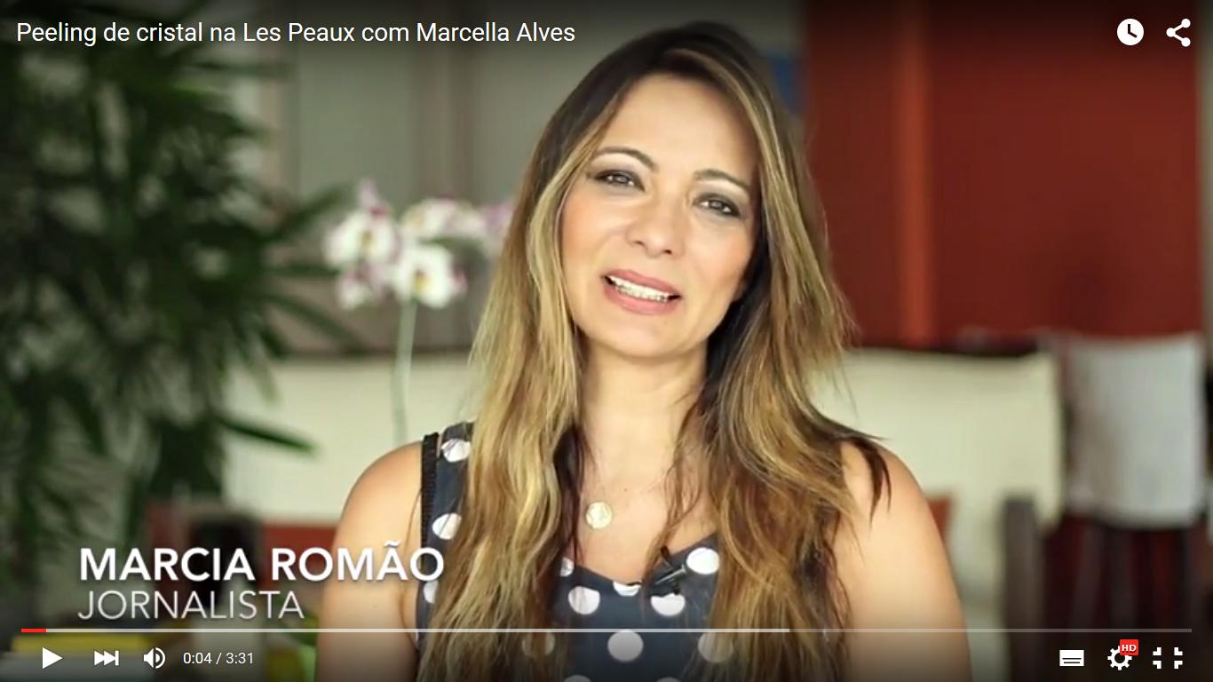 """A jornalista Marcia Romão em vídeo no seu canal do Youtube no qual se submete ao peeling com """"efeito Cinderela"""" exclusivo da clínica Les Peaux."""