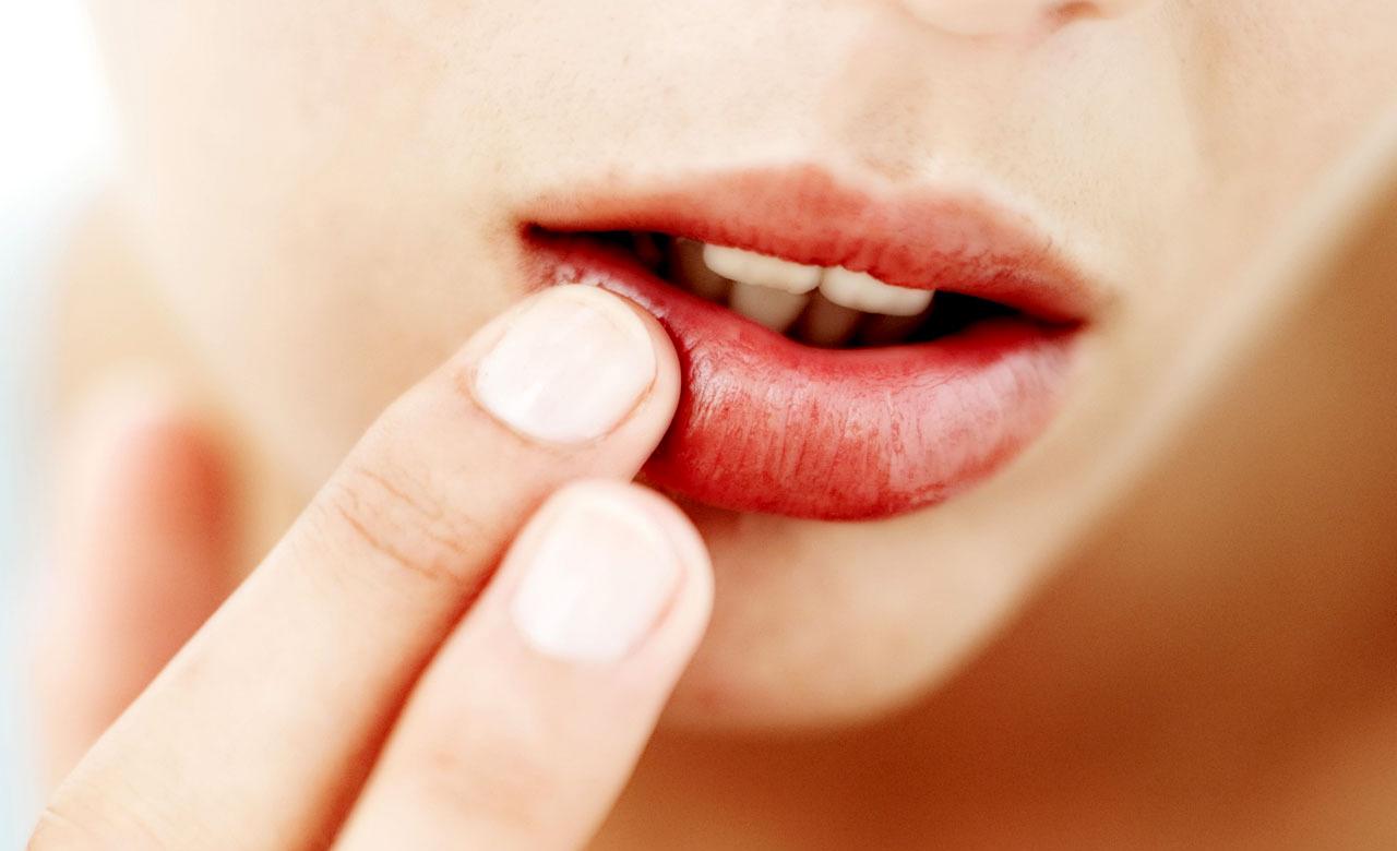 O uso de Ácido Hialurônico com o objetivo de tratar a pele não aumenta o volume dos lábios e proporciona hidratação máxima.