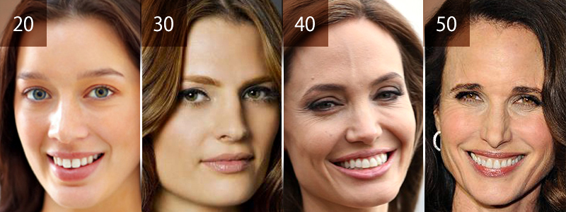 A partir do 25 até os 30 anos nota-se os primeiros sinais do envelhecimento da pele, principalemnte no rosto por causa das linhas de expressão. Mas é a partir dos 50 que estes sinais se intensificam com a perda de volume, flacidez, sulcus e rugas mais expressivos.