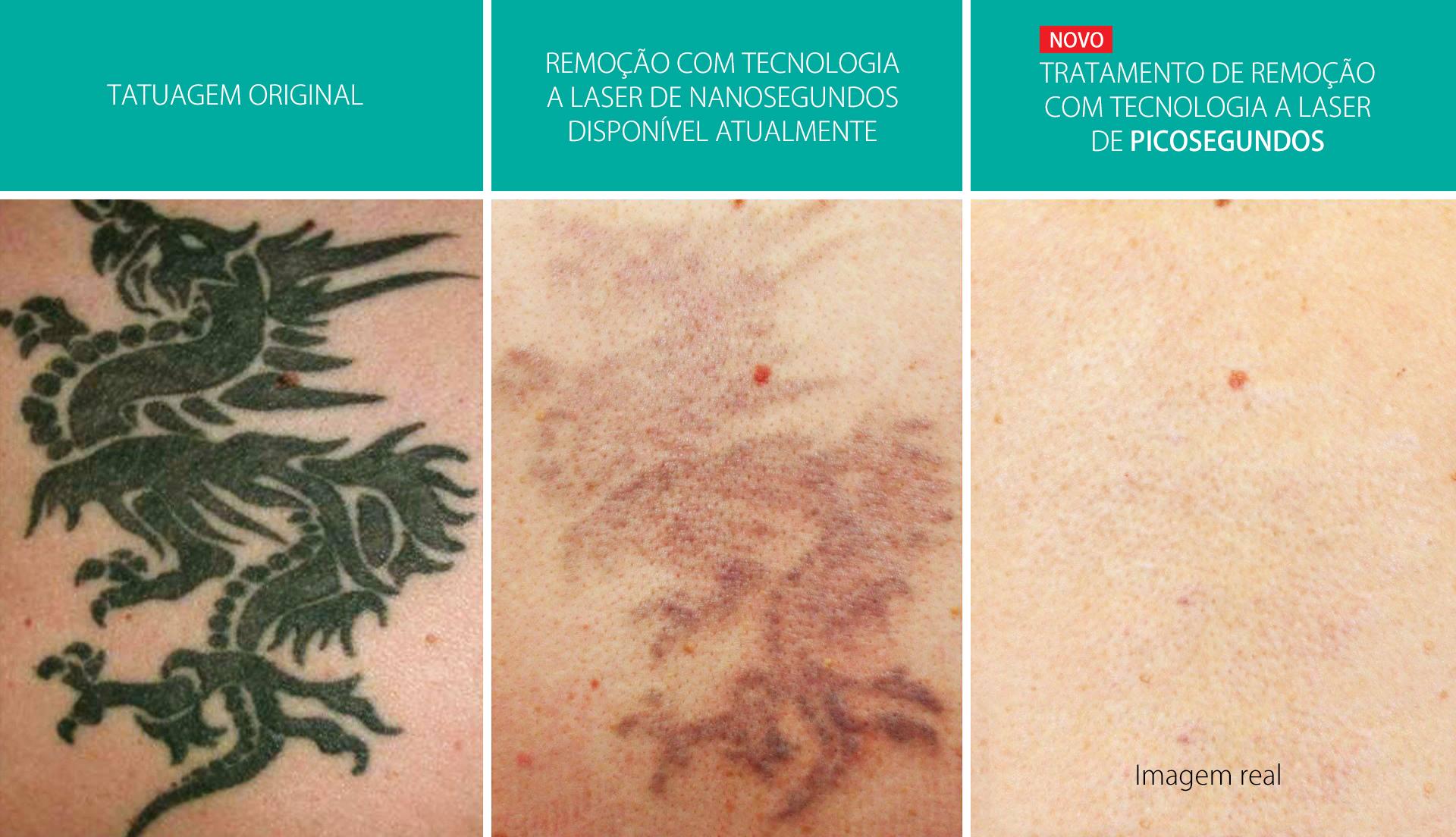 Nova tecnologia a laser de picosegundos é a esperança mais efetiva para quem quer remover uma tatuagem.