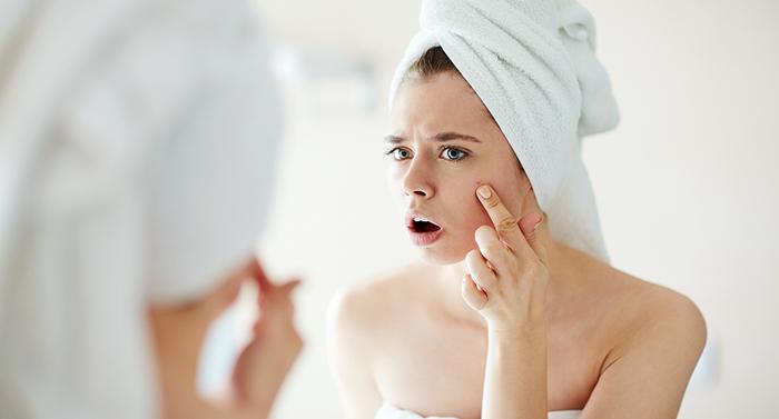 A acne é um problema que afeta quase 40% das mulheres com idades entre 20 e 40.