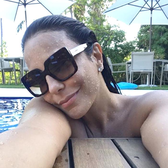 Ivete Sangalo compartilha foto mostrando mancha marrom na testa. Foto: Reprodução/Instagram