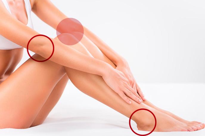 Menor concentração de glândulas sebáceas na região dos joelhos, calcanhares e cotovelos é a razão do ressecamento. (imagem Les Peaux) Menor concentração de glândulas sebáceas na região dos joelhos, calcanhares e cotovelos é a razão do ressecamento. (imagem Les Peaux)
