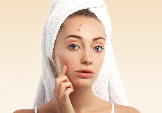 Passou dos 25 anos, mas sofre com a acne? Saiba como evitar o problema, se a alimentação pode ser responsável e como tratar. Imagem Shutterstock