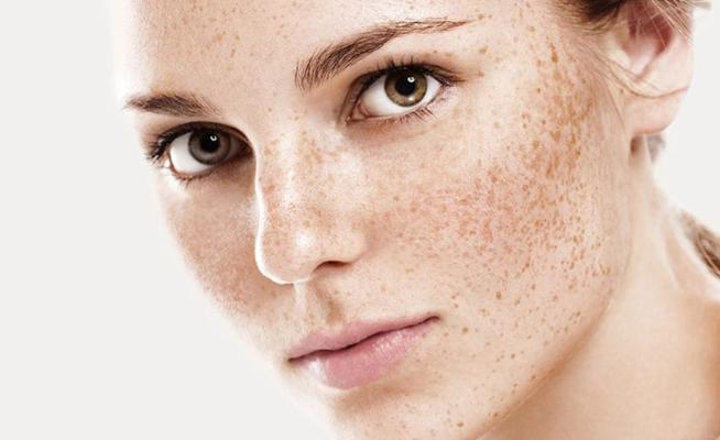 5 dicas para tratar manchas causadas pelo sol. imagem Shutterstock